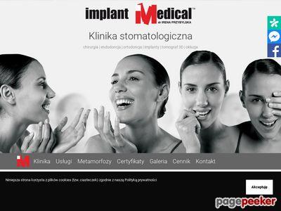 Implanty gniezno