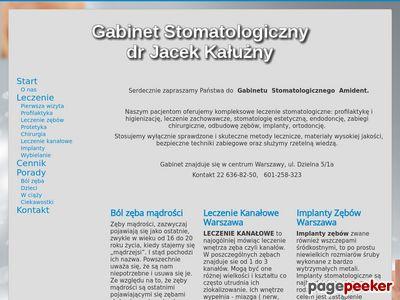 Leczenie kanałowe – dentysta Warszawa