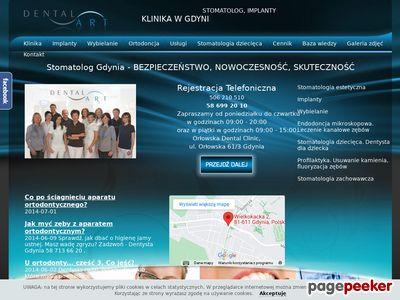 Dentysta Gdynia
