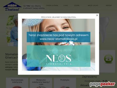Protetyka, ortodoncja Gliwice