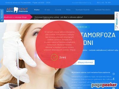 ART-DENT stomatologia estetyczna Rybnik