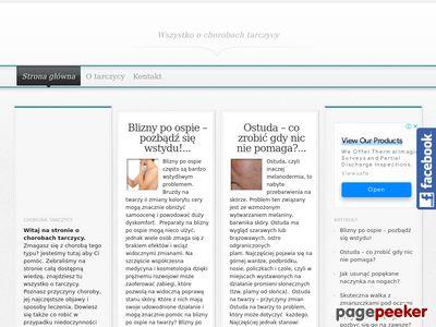 Tarczyca - Chorobatarczycy.net.pl