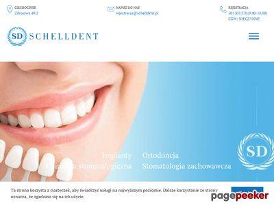 Chirurgia stomatologiczna Bydgoszcz - Schelldent