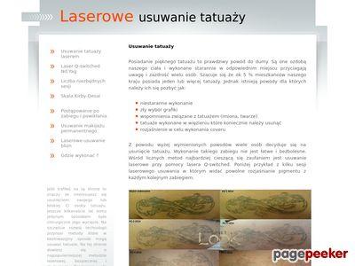 Laserowe usuwanie tatuaży
