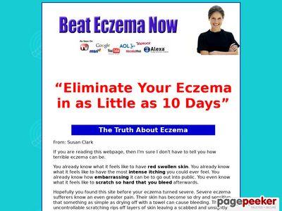 Beat Eczema