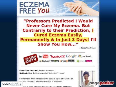 Eczema Free – How to Treat Eczema Easily and Naturally