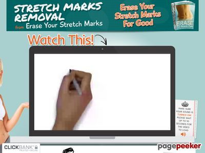 Stretch Marks Removal – Justin E. King