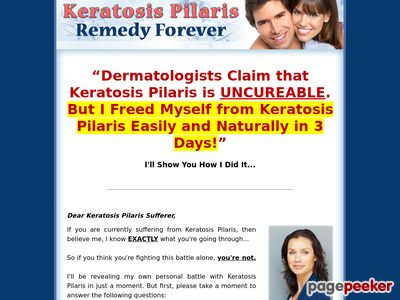 Keratosis Pilaris Remedy Forever  – How to Free Yourself From Keratosis Pilaris Forever!