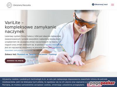 Likwidacja naczynek na twarzy - zamykamynaczynka.pl - Gdańsk, Sopot, Gdynia