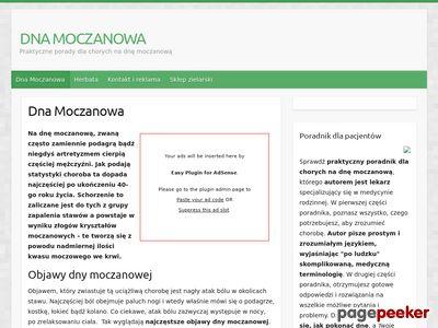 Dna moczanowa - leczenie i objawy