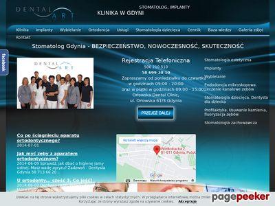 Wybielanie zębów w Gdyni