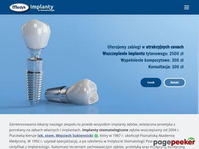Implanty stomatologiczne - gabinet Medykdent.pl
