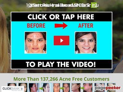 Acne No More Video – Heal Acne In 7 Days