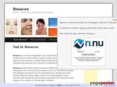 Rosacea - Information,  Symptom och Behandling - http://www.rosacea.n.nu