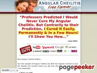 Angular Cheilitis Free Forever - How to Permanently Heal Angular Cheilitis Naturally & in Less or 12 Hours