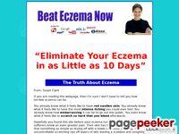 Get Rid of Eczema – Beat Eczema