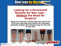 Straight And Attractive Legs Without Surgery – Bow Legs No More