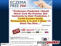 Eczema Free - How to Treat Eczema Easily and Naturally