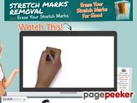 Stretch Marks Removal - Justin E. King