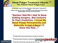 Cured Nasal Polyps Permanently – Nasal Polyps Treatment Miracle