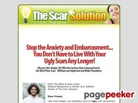 Fast Home Scar Removal – The Scar Solution