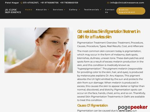 Skin Pigmentation Treatment in Delh