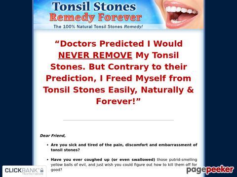 Tonsil Stones Remedy Forever - The 100% Natural Tonsil Stones Remedy!