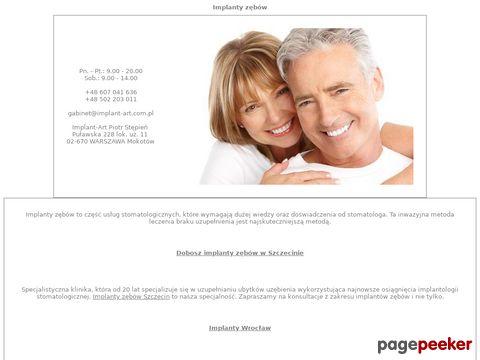 IMPLANTOLOGIA - Protetyka, Ortodoncja.